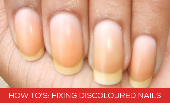 Fixing Discoloured Nails