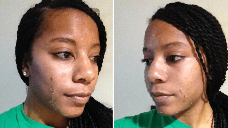 Chemical Peel for Africans and the Dark Skinned