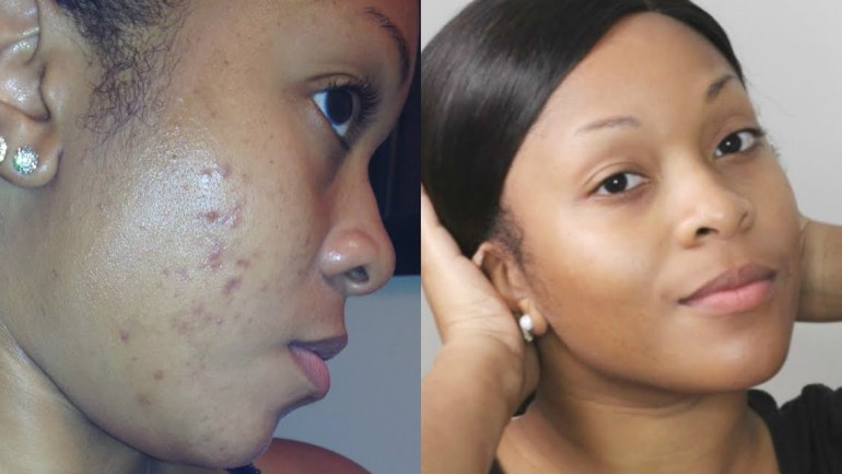 How to Clear Acne & Dark Spots on your Skin