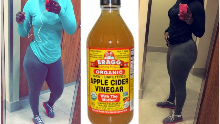 How To Lose Weight With Apple Cider Vinegar and Other Tips