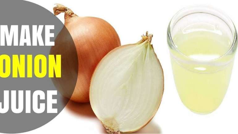 How To Make Onion Juice For Dandruff And Hair Growth