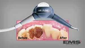 airflow(2)_300