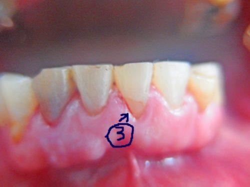 綺麗にお掃除した歯