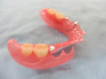 ノンクラスプ義歯右側面観