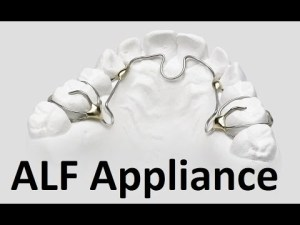 ALF appliance