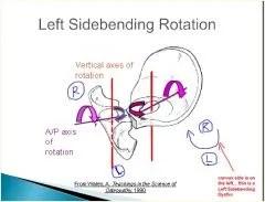 left sidebending