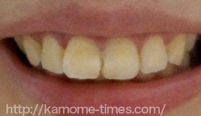 前歯の神経を取った後の画像