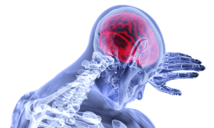 脳梗塞の後遺症