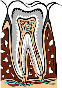 顎骨骨髄細菌感染