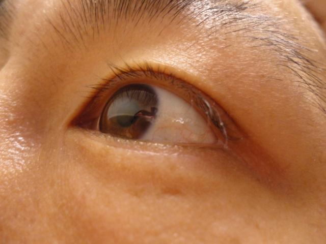 白目が真っ赤!血管が切れる「結膜下出血」かも…原因と対処法