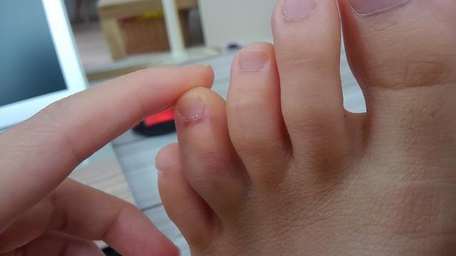 足の指の骨折を早く治す方法!必要な栄養素や骨折した時の注意点