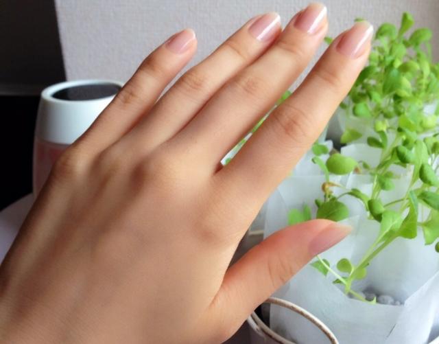 爪の根元の穴!?気になる症状の原因と正しいネイルケア