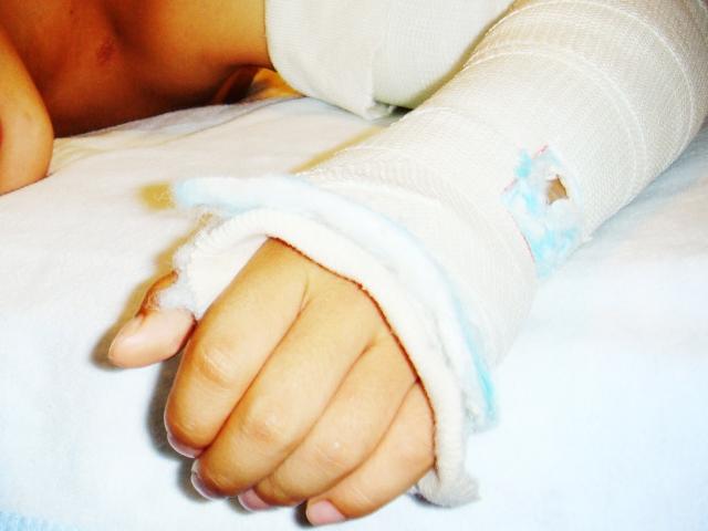 手の骨折はどれくらいで完治する?期間・治療法・注意点