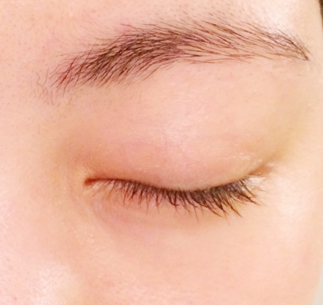 目の痙攣が止まらない!上まぶたの症状と対処法