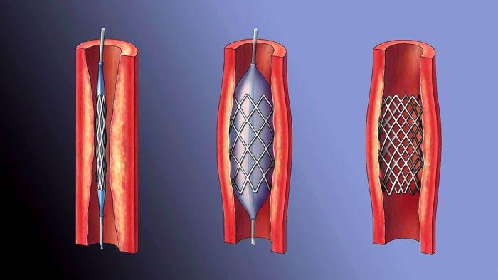 Кальциноз стенок аорты: шунтирование