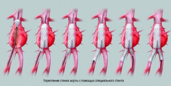 стентирование брюшной аорты