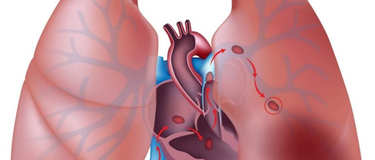тромбоз коронарный артерий