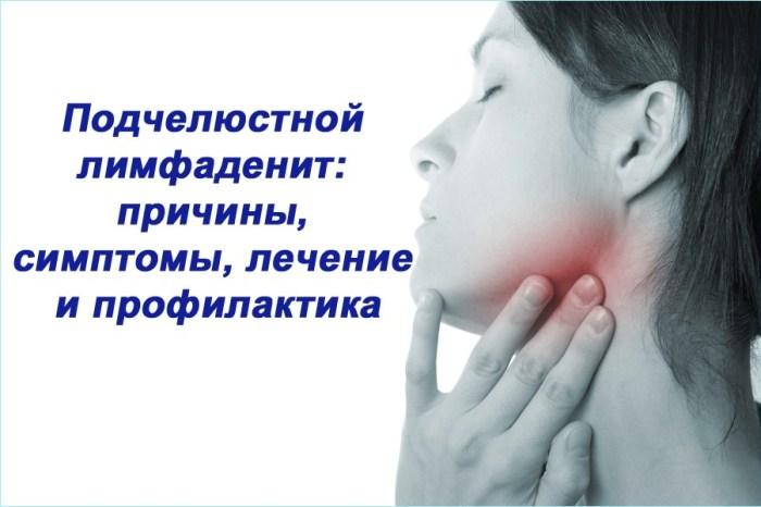 Лечение подчелюстного лимфаденита