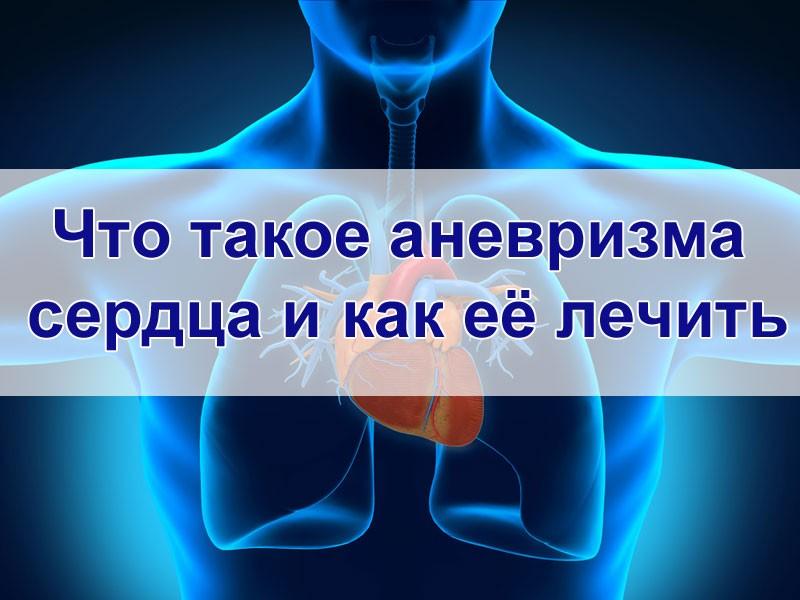 Лечение аневризмы сердца
