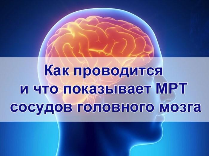 что показывает МРТ сосудов головного мозга