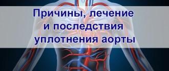 Лечение уплотнения аорты