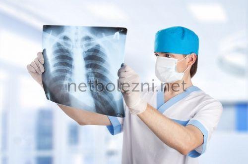 Läkaren tittar på lungans ögonblicksbild