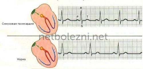 Ανυψωμένο αριθμό καρδιακών συντομογραφιών