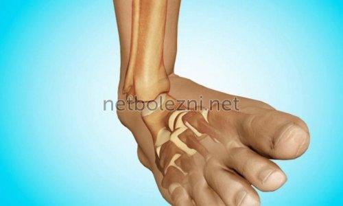 Ушиб ноги в районе щиколотки