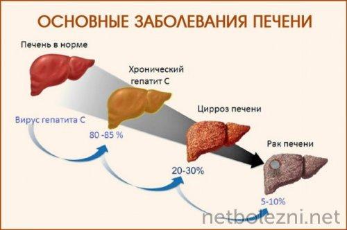 Основные заболевания органа