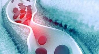 Χοληστερίνη: Ποιοι πρέπει να υποβάλλονται τακτικά σε εξέταση & ποιες οι φυσιολογικές τιμές