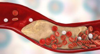 Χοληστερίνη: Οι επικίνδυνες τιμές σε παιδιά και ενήλικες (πίνακες)
