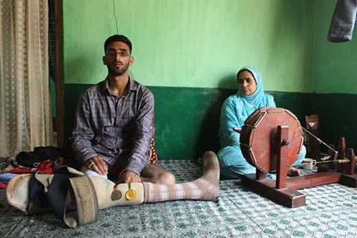 Javaid received a bullet in his upper right leg when he was trapped in firing by CRPF near Saidpora Bridge. Pic: Mukhtar Ahmad