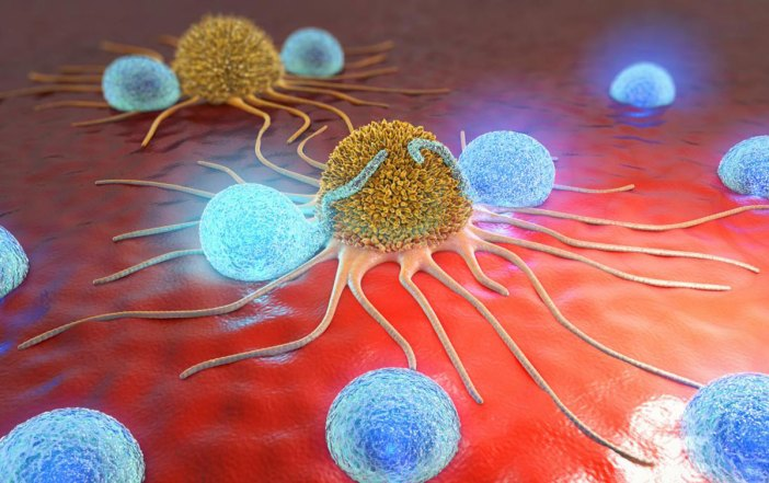 Cancer cells shown here with lymphocytes.