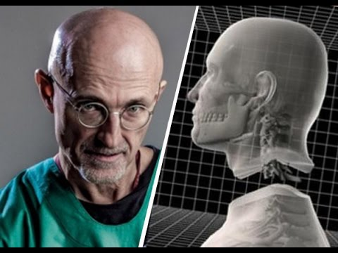 Professor claims doctors successfully performed human head transplant