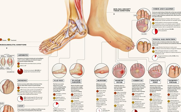 The most common foot and ankle ailments