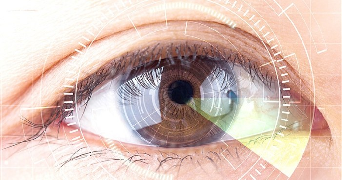 Simplest, Quickest Way to Remove Cataract: Robotic Surgery