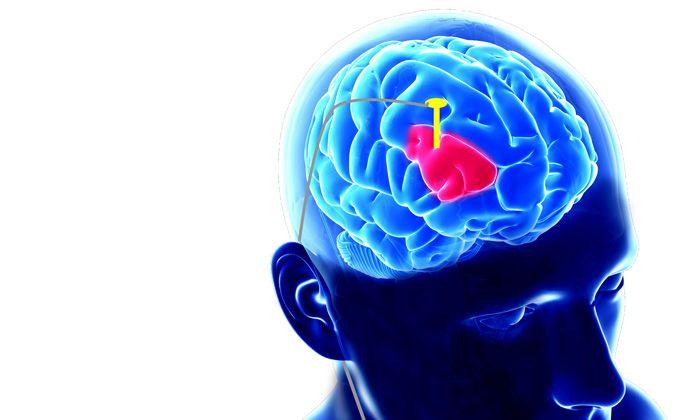 Parkinson 's disease is treatable with Advanced Deep Brain Stimulation Technique