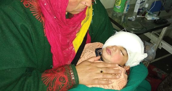 The sordid saga: Pellet removed from youngest victim's eye