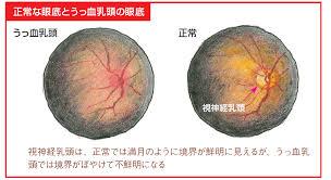 うっ血乳頭とは?原因,畫像所見|醫學的見地から