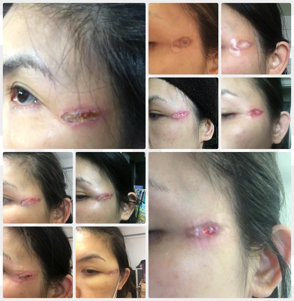 醫美傷人  電波燙傷 | 疤痕修復全紀錄