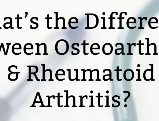 What's the Difference Between Osteoarthritis & Rheumatoid Arthritis?