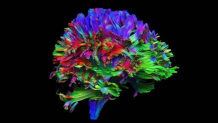 Neuropathways