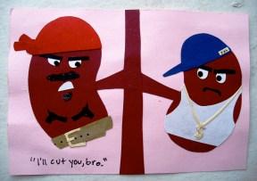 Dueling kidneys