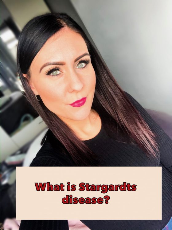 what is Stargardts disease wording and a picture of me
