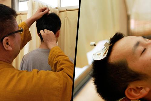 頭にていしんを当てているところです。(左)頭に灸頭鍼をしているところです(右)