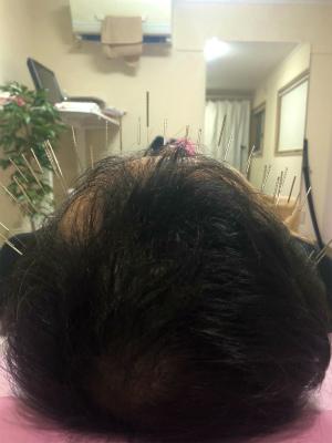 薄毛と鍼灸3