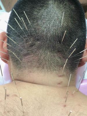 肩こりと鍼灸2