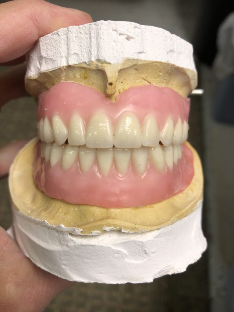 An upper and lower denture I set recently.
