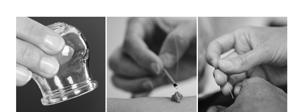 what to expect from acupuncture treatment