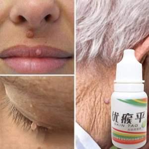 Skin-Tag-Mole-Wart-Remover